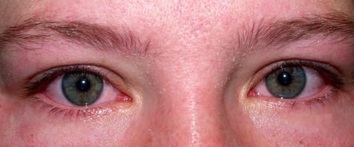 crying / allergy eyes